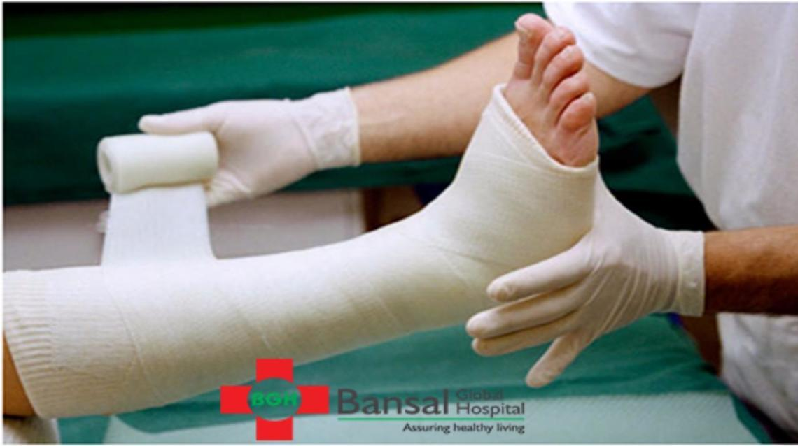 Treatment of Fracture Without Surgery by Our Expert Dr Suresh Bansal