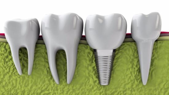 Dental Implant Compared to Dental Bridge