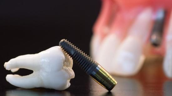 Why Do Dental Implants Costs Much? 1/2
