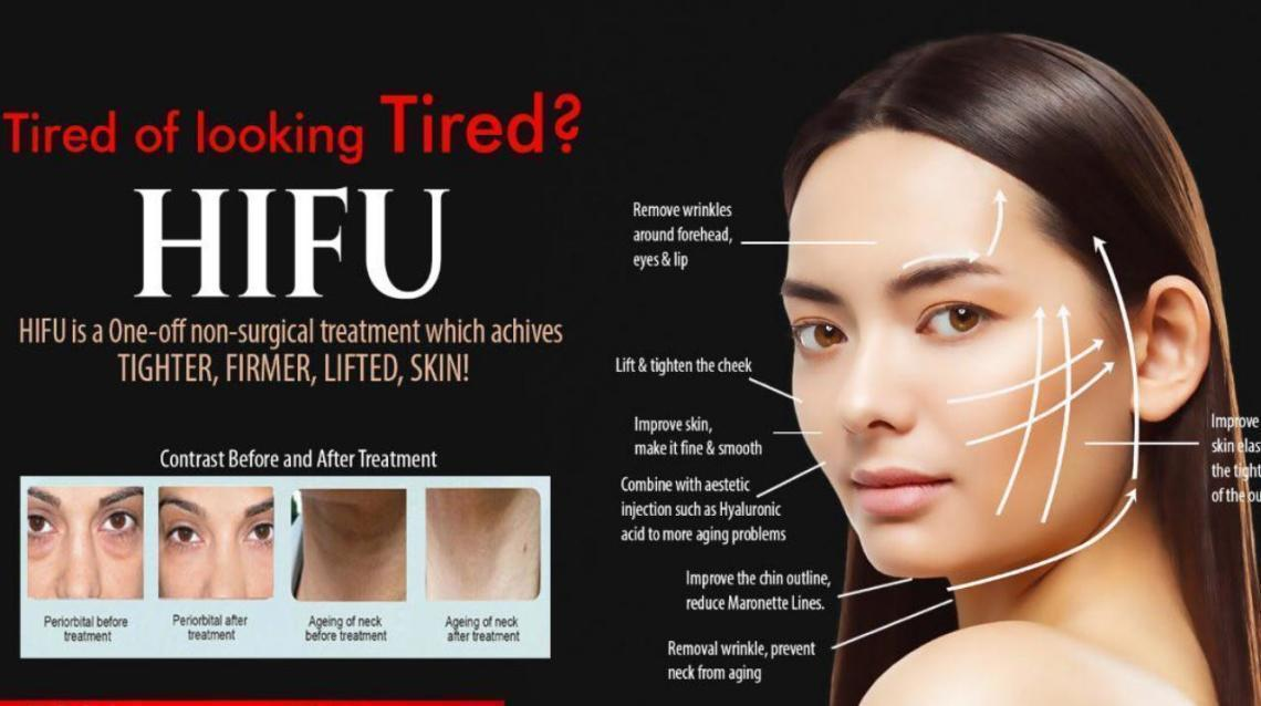 HIFU- Nonsurgical Face Lift