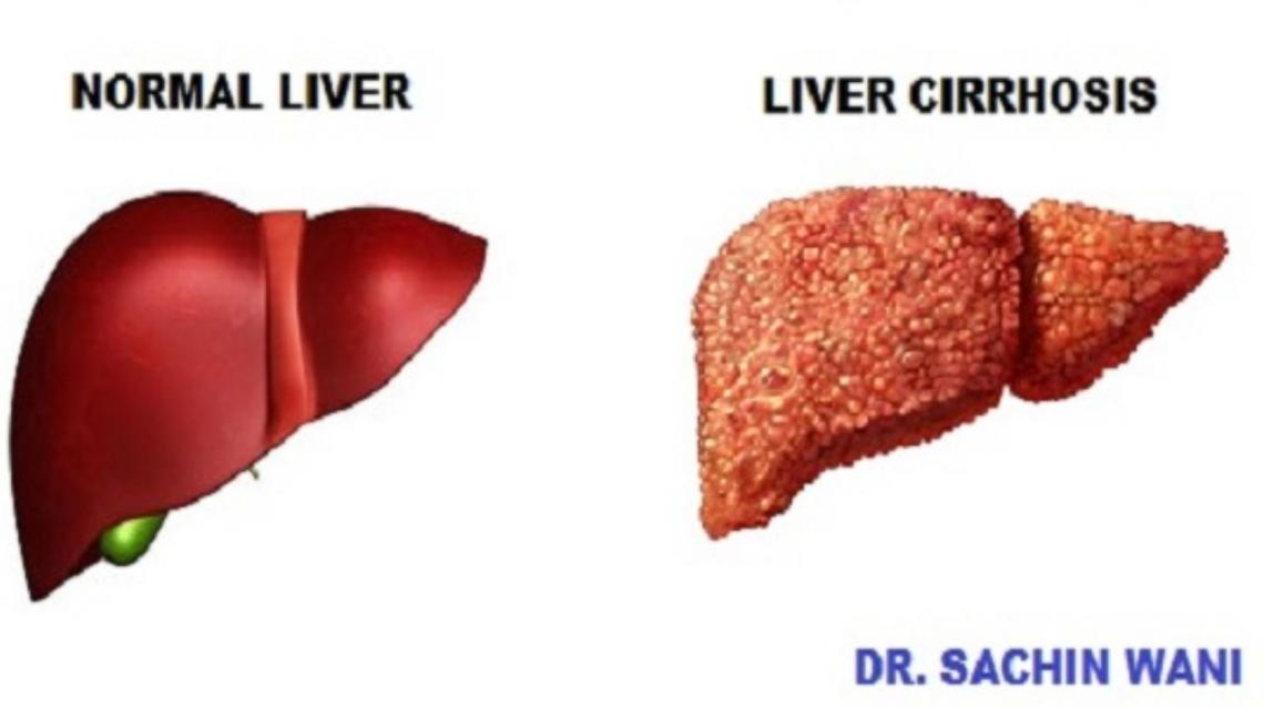 Liver  Cirrhosis – Symptoms, Causes and Treatment