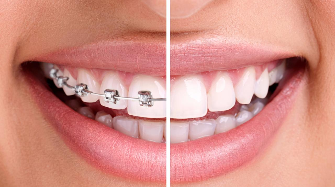 When to Have Braces???