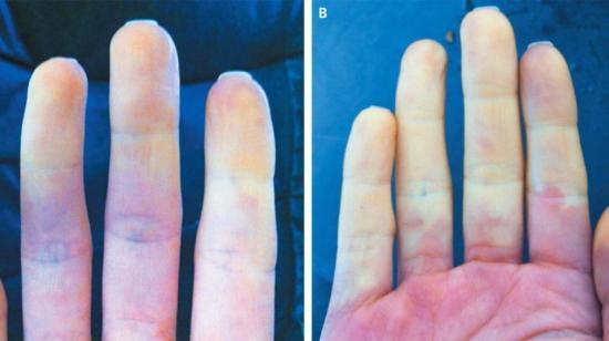 Swelling, Coldness of Fingers in Winter-Do's and Don't and Homoeopathic Approach