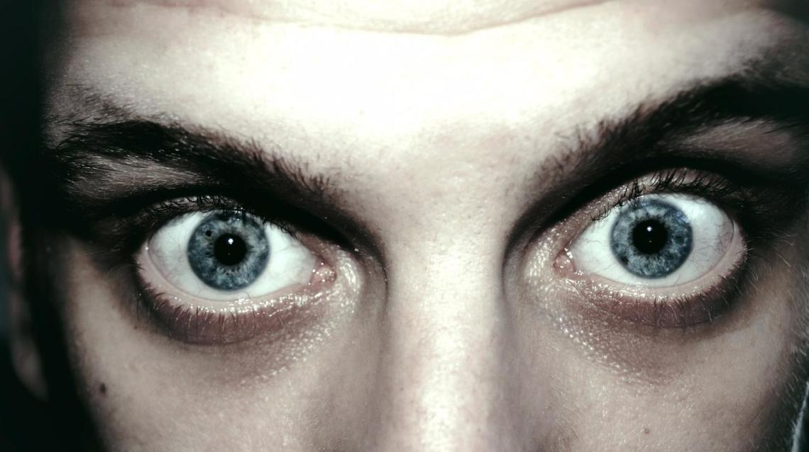 Bulging Eyes 10 Things That May Cause It