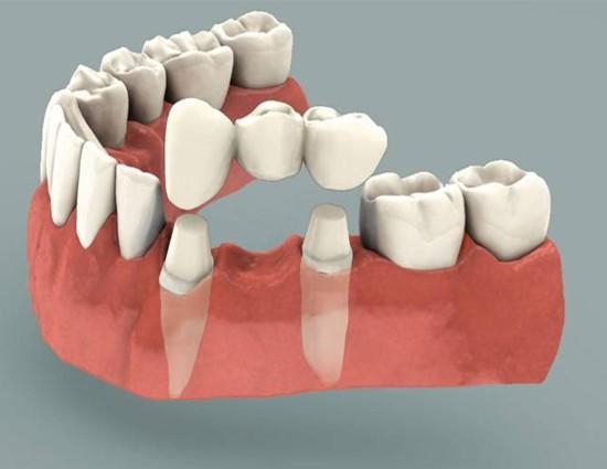 Dental Bridge Causing Harm To Adjacent Teeth