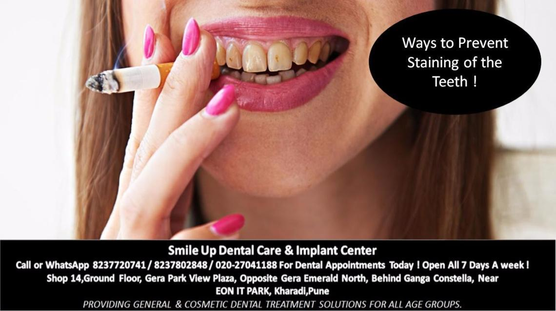 Ways to Prevent Staining of the Teeth