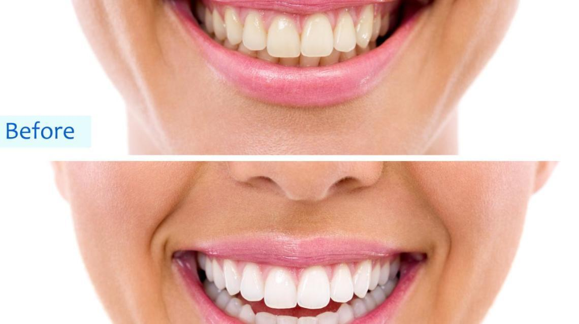 Teeth Whitening ..Now at Home