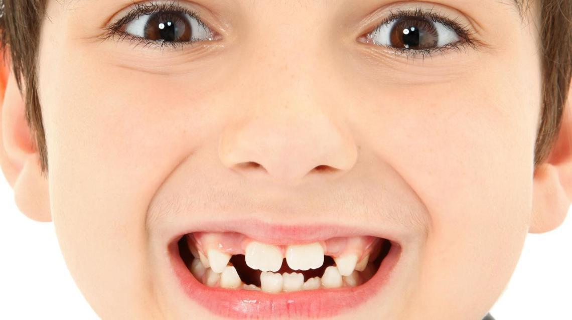 Benefits of Early Orthodontic(braces) Treatment