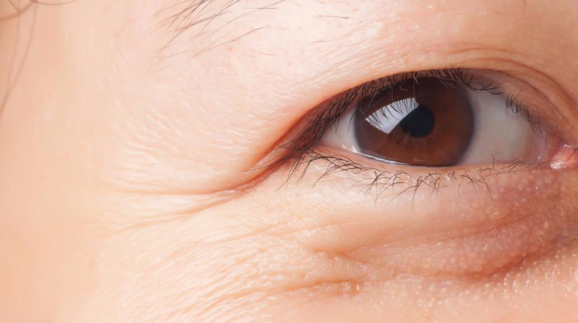 7 Ways That Can Reduce Your Wrinkles