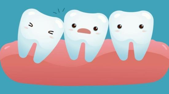 10 Things You Did Not Know About Wisdom Teeth!