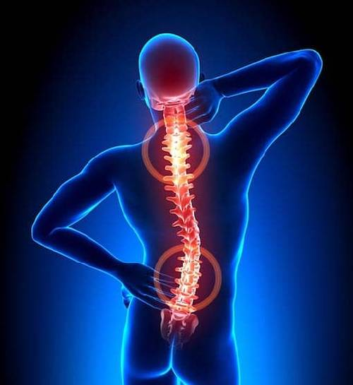 Back Pain: Causes, Symptoms, and Treatment