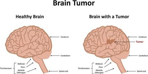 brain tumour symptoms, causes and treatment Brain Herniation Diagram