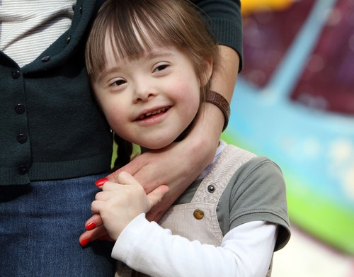 Down Syndrome: Causes, Symptoms & Treatment