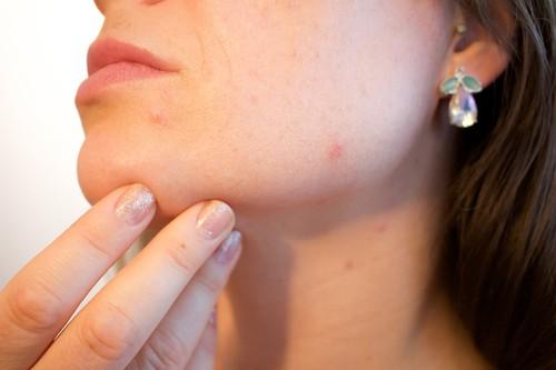 Acne Treatment Procedures Overview