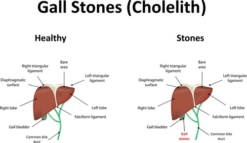 Cholelithiasis: Symptoms, Complications, and Treatment on
