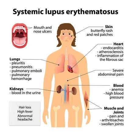 Lupus Causes Symptoms And Treatment