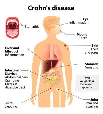 Crohn's Disease: Symptoms, Complications, and Treatment