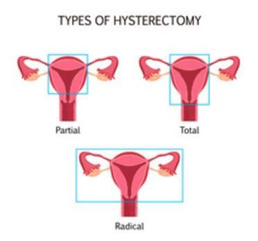 Hysterectomy Procedures: Types, Costs, and Risks