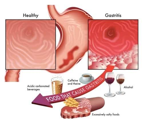 Gastritis: Symptoms and Treatment