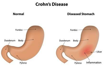 Crohn's Disease: Symptoms, Complications, and Treatment