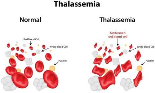 Thalassemia: Causes, Symptoms, and Treatment