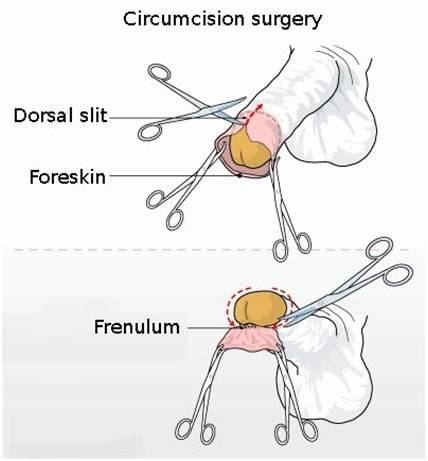 Adult circumcision technique