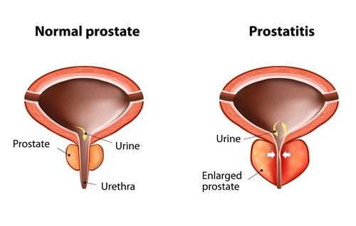 chronic bacterial prostatitis wiki A prostatitisből javítja a vizeletet