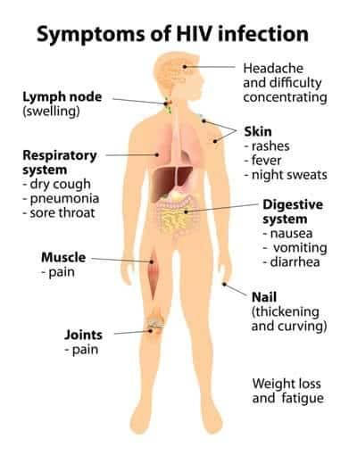 https://www.practo.com/health-wiki/assets/images/symptom/aids_2.jpg