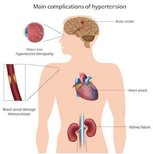 High Blood Pressure (HBP)/ Hypertension: Symptoms, Complications