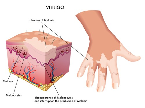 Vitiligo Symptoms Complications And Treatment