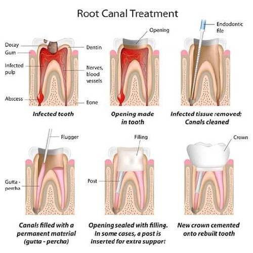 treatment Root canal
