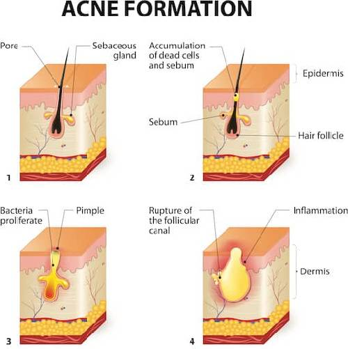 Acne Causes Symptoms And Treatment