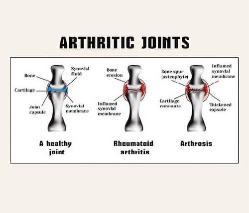 Arthritis: Symptoms and Treatment