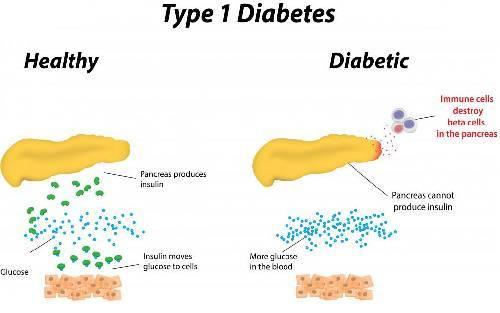 wiki diabetes hba1c