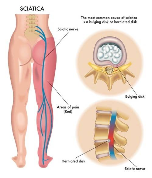 Sciatica: Pain, Treatment, and Causes