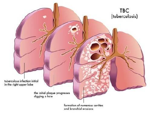 Tuberculosis (TB): Causes, Symptoms, and Treatment