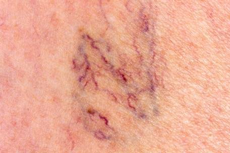 Varicose Veins: Causes, Risk Factors, and Treatment