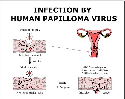 Human Papillomavirus (HPV) Infection: Symptoms and Treatment
