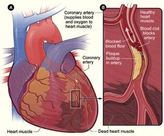 Acute coronary syndrome acs symptoms complications and treatment how does acute coronary syndrome occur ccuart Gallery