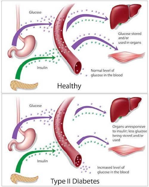 Diabetes Mellitus Type 2 Symptoms Complications And Treatment